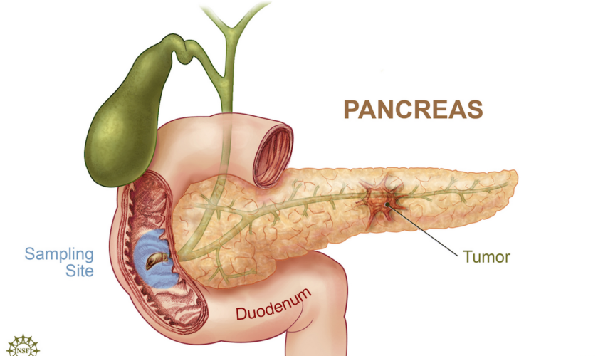 pancreas_1